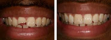Broken teeth treatment Trivandrum Kerala