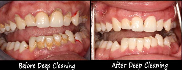 deep cleaning treatment