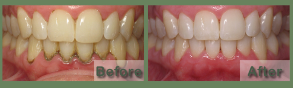 Periodontal cleaning treatment
