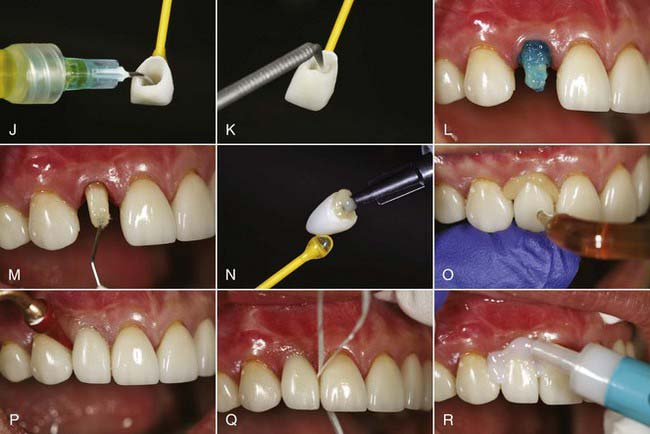 Simple Tooth Ceramic Restoration Trivandrum Kerala